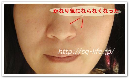 ファンファレ ととのうみすと 口コミ 効果 ダブル洗顔不要 毛穴の黒ずみ 肌が整うミストスプレー トトノウミスト 通販 最安値 毛穴のつまり解消