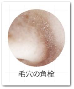 ととのうみすと 口コミ ファンファレ 毛穴 化粧水スプレー トトノウミスト 効果 通販 最安値 ブログ 肌悩み 毛穴の角栓