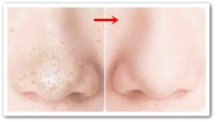 ととのうみすと 口コミ ファンファレ 毛穴 化粧水スプレー トトノウミスト 効果 通販 最安値 ブログ 使用前後